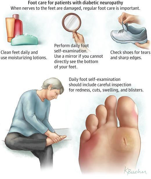 How Diabetes Causes Neuropathy