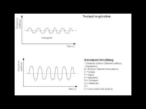 Why Does Ketoacidosis Cause Rapid Breathing