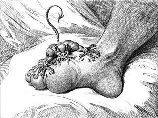 Dear Mark: Risk Of Gout?