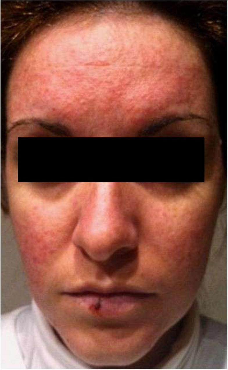 Rosacea-like Facial Rash Related To Metformin Administration In A Young Woman