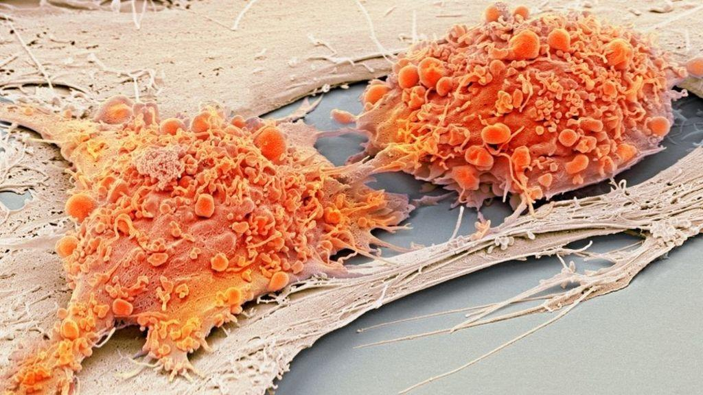 NHS starts diabetes 'stem cell factory'