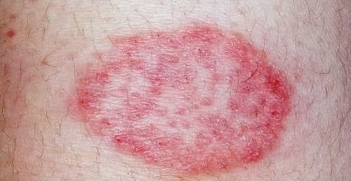 Diabetes & Eczema (Itchy Skin): What's the Connection, Complications & Treatment