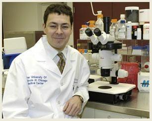 Islet Cell Transplant Diabetes