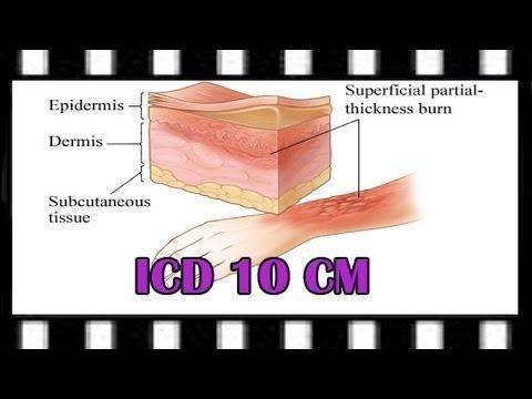 Starvation Ketosis Icd 10