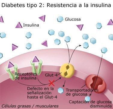 Qu Es La Diabetes Tipo 2?
