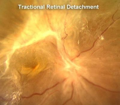 Diabetic Tractional Retinal Detachment