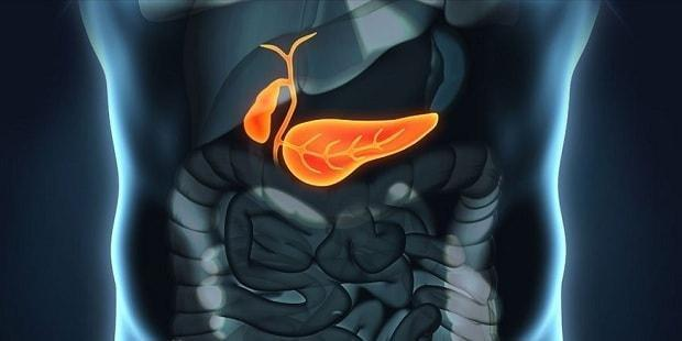 What is Type 3C (Pancreatogenic) Diabetes? Causes, Complications & Treatment