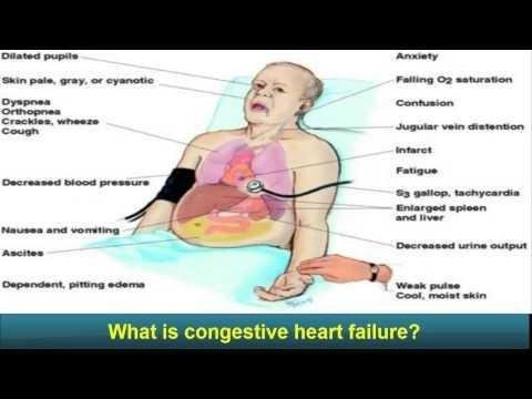 Lactic Acidosis In Acute Congestive Heart Failure
