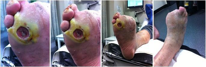 The Validity And Reliability Of Remote Diabetic Foot Ulcer Assessment Using Mobile Phone Images