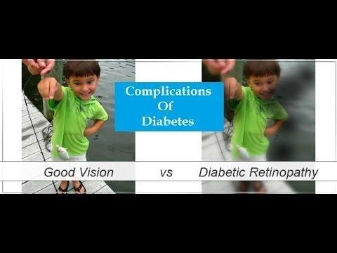 2.3 Diabetic Complications