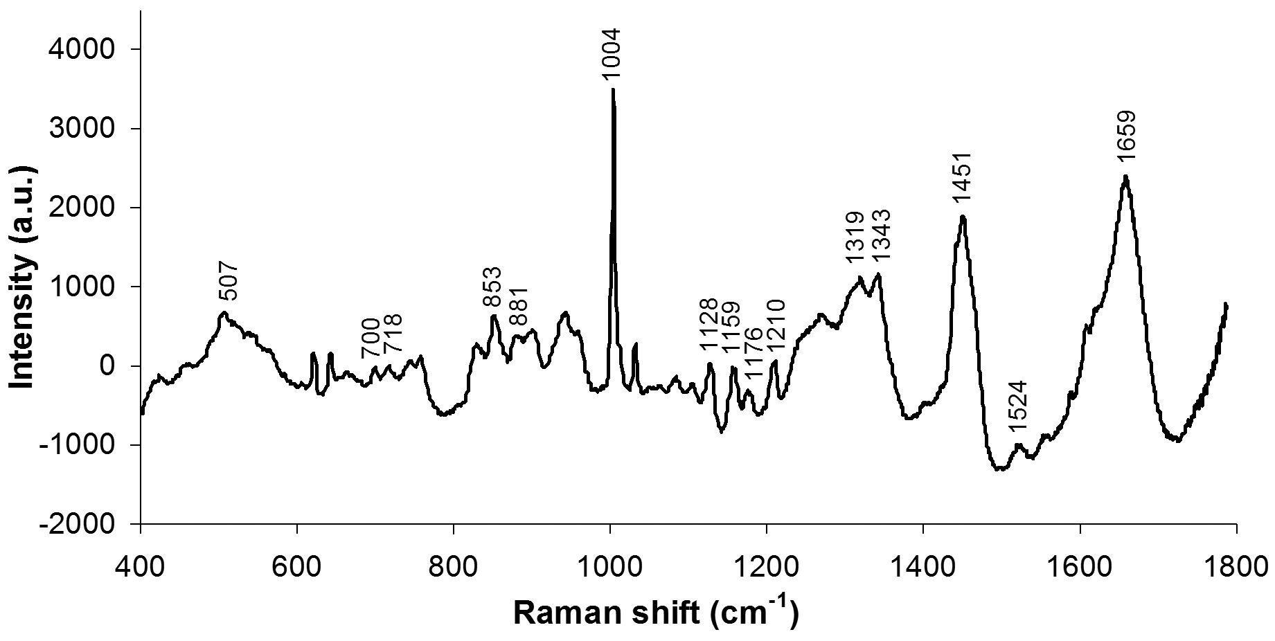 Detecting Alterations Of Glucose And Lipid Components In Human Serum By Near-infrared Raman Spectroscopy