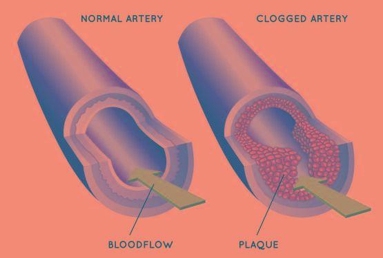 Relationship Between Diabetes And Heart Disease