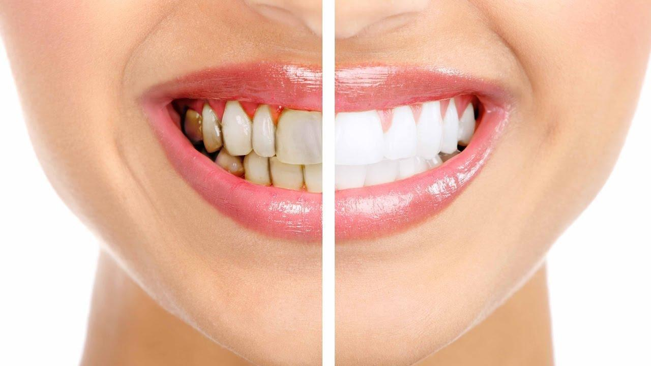 How To Prevent Damage To Your Teeth And Gums When Having Diabetes…