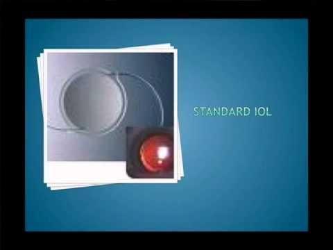 Cataract Due To Type 2 Diabetes Mellitus Icd 10