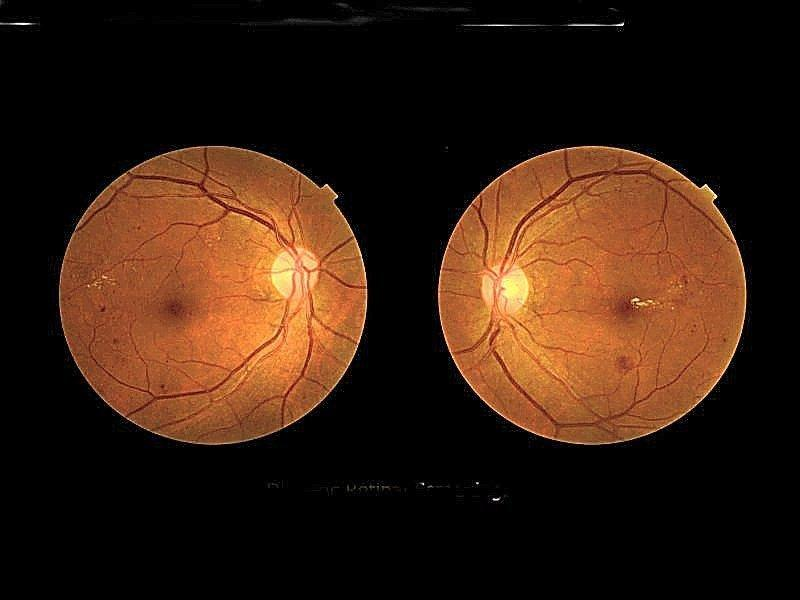 Targeted Retinopathy Screening Proposed In Type 1 Diabetes
