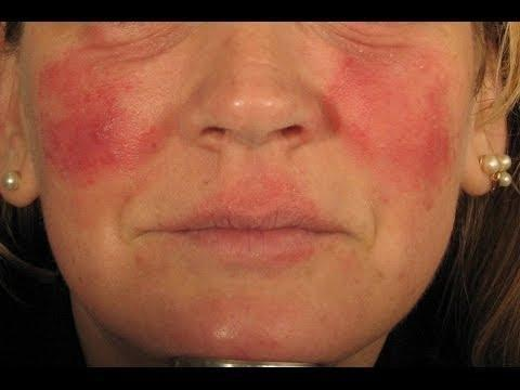 Sugar And Rosacea - Carbohydrate Trigger Avoidance - Rrdi Member Forum