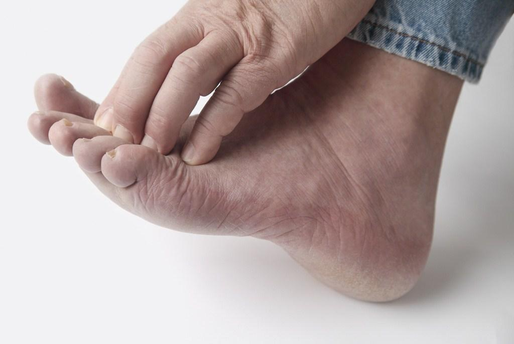 Diabetic Foot Cream Neuropathy