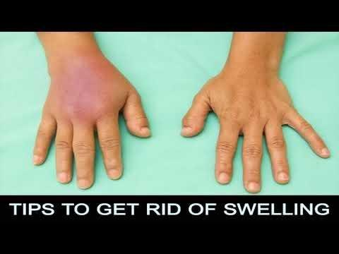 Swollen Feet, Ankles And Hands - Diabetes - Type 1 - Medhelp