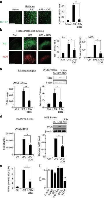 Bioenergetic State Regulates Innate Inflammatory Responses Through The Transcriptional Co-repressor Ctbp
