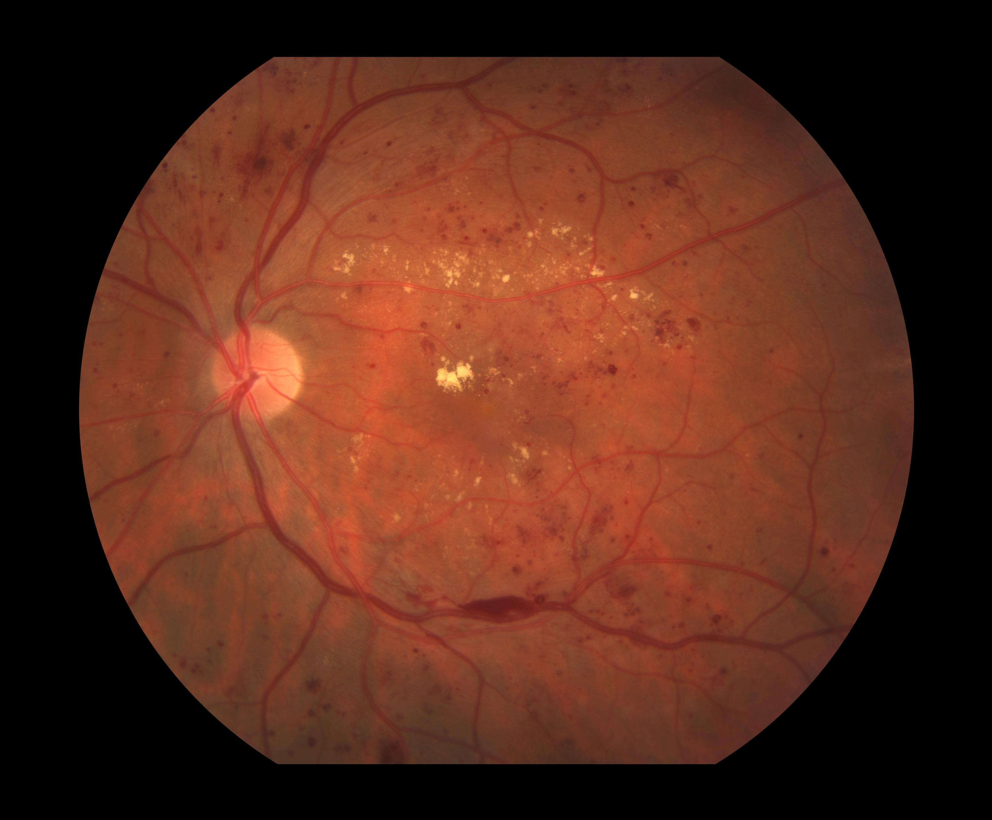 Comparison Between Diabetic Retinopathy And Hypertensive Retinopathy