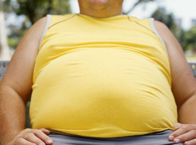 Understudied racial minority groups show alarmingly high rates of obesity and diabetes