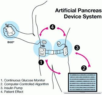 Disadvantages Of Artificial Pancreas