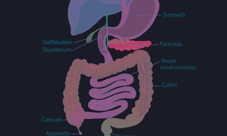 Prednisone Causes Diabetes