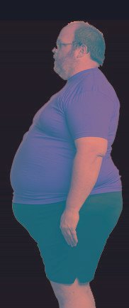 Can You Get Diabetes From Being Overweight?