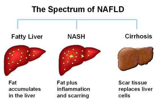Research Review: Lean Liver With A Low-carb Diet