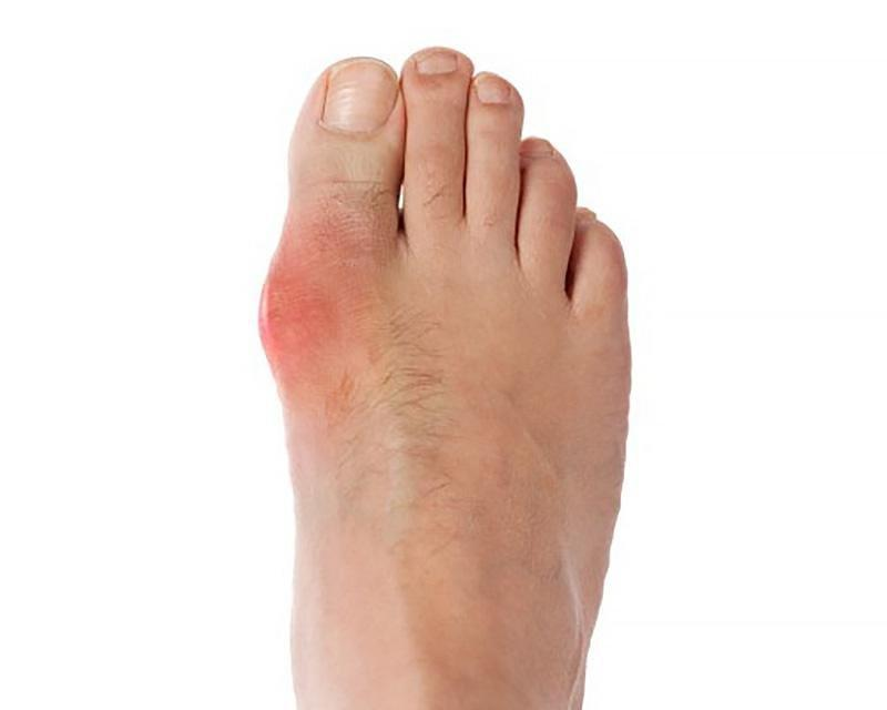 Gout And Low Carb