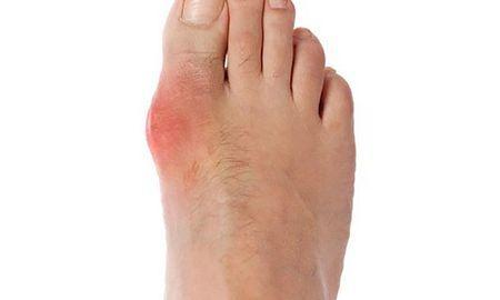 Ketones Gout