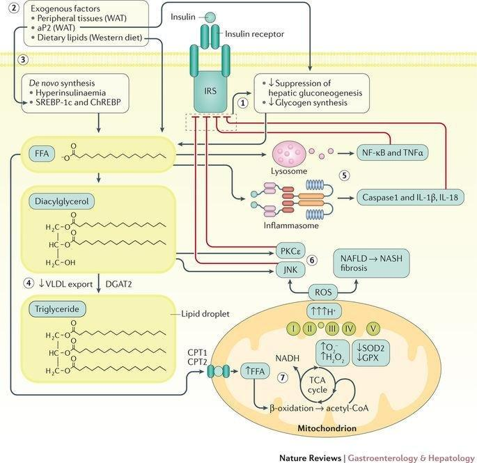 Nafld And Diabetes