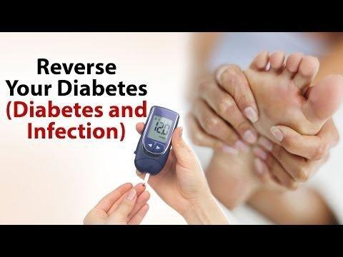 Susceptibility To Infections In Persons With Diabetes Mellitus