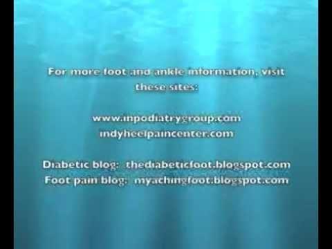 Diabetic Toe Amputation Recovery