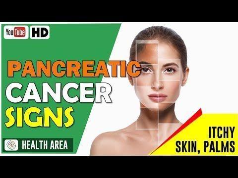 Metformin Causes Pancreatic Cancer