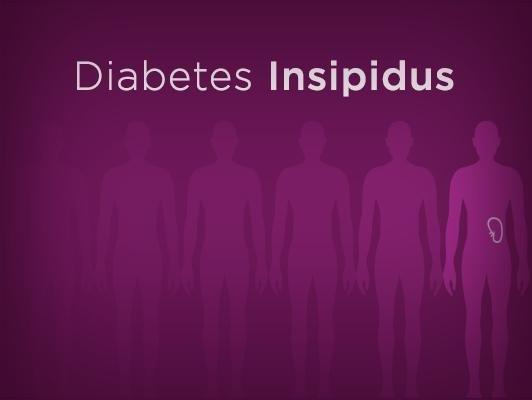 In What Ways Is Diabetes Insipidus Similar To Diabetes Mellitus