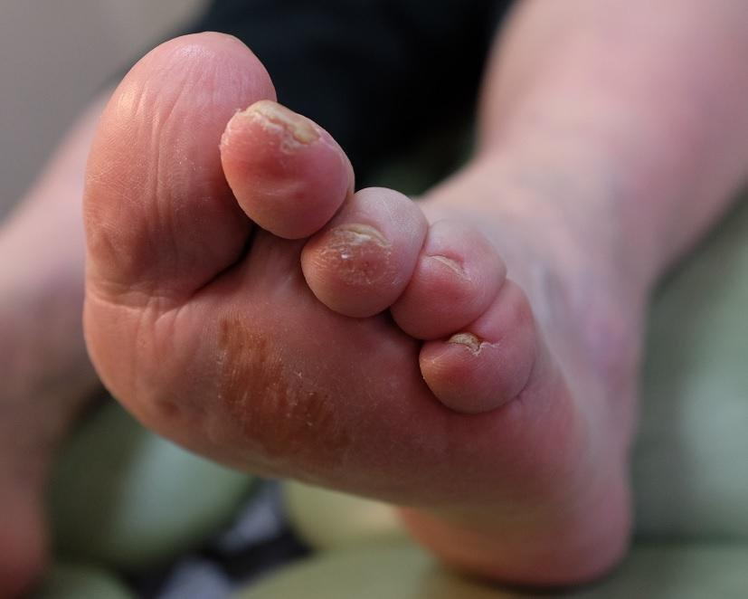 Why Can T People With Diabetes Feel Their Feet?