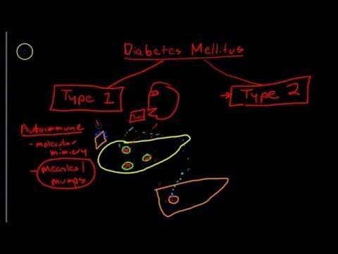 Genetic Factors In Type 1 Diabetes