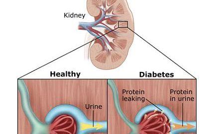 Ketones And Kidney Failure