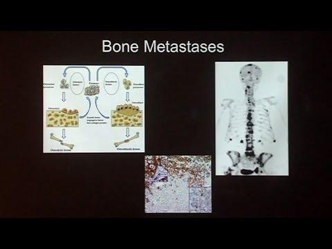 Metformin Prostate Cancer 2016