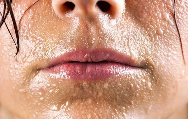 Diabetes Sweating Face