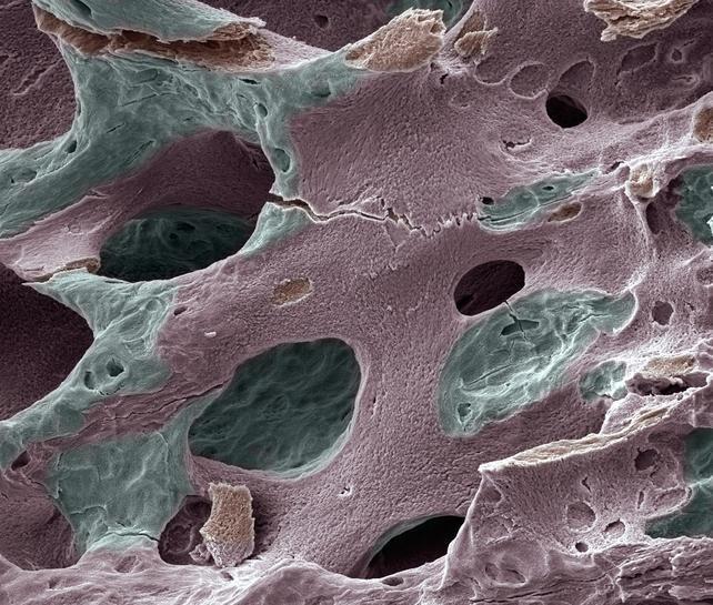 Adynamic Bone Disease Prevalent In Type 2 Diabetes Patients With Ckd