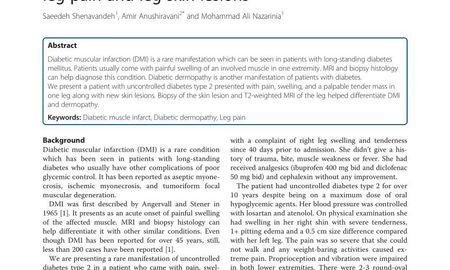Diabetic Dermopathy Differential Diagnosis