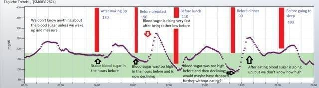 Continuous Glucose Monitoring Systems - A Growing Market