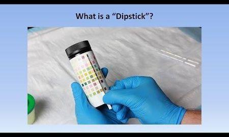 Urine Glucose Test Strips Colour Chart