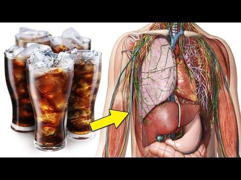 Gestational Diabetes: Link To Sugary Drinks?