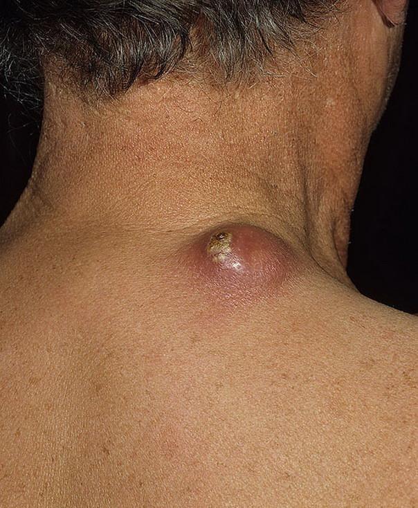 Boils And Furuncles In Diabetes Mellitus