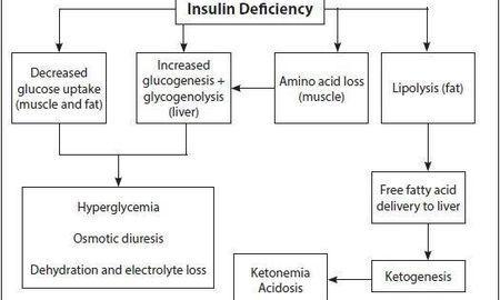 Ketoacidosis How To Treat