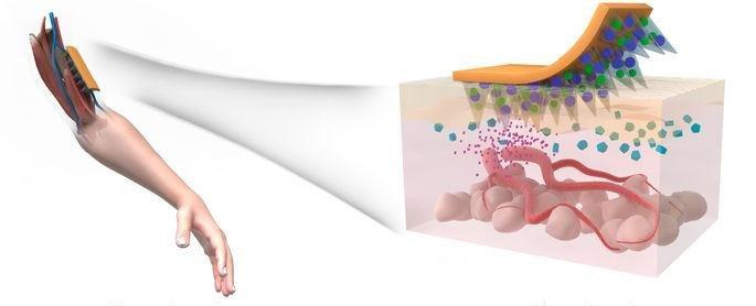 New alginate skin patch for type 2 diabetes