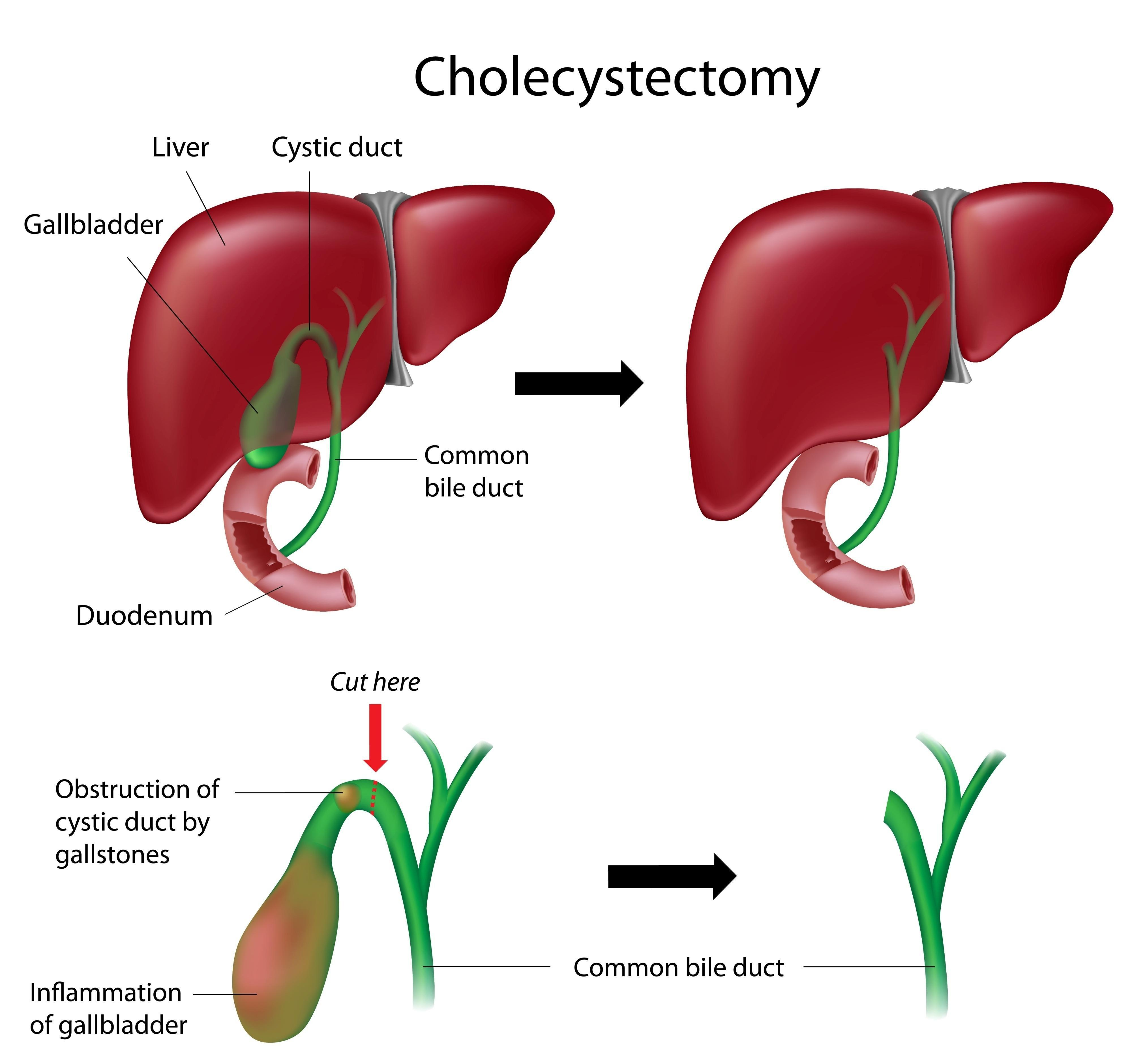 Gallbladder Removal By Laparoscopy (laparoscopic Cholecystectomy)
